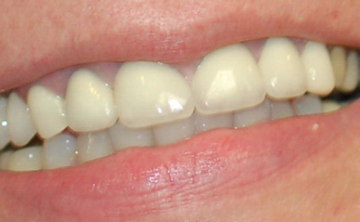 BL Post Op Porcelain Crowns #6-11