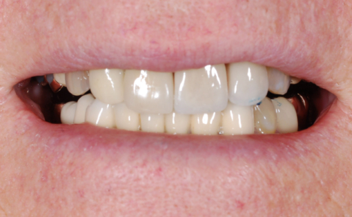 IP Post Op Porcelain Veneers #9-10