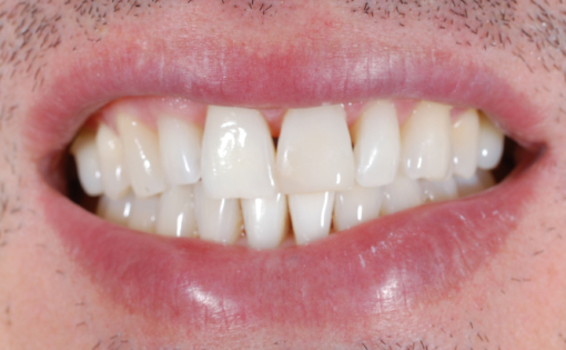 JL Post Op Composite Repair #9