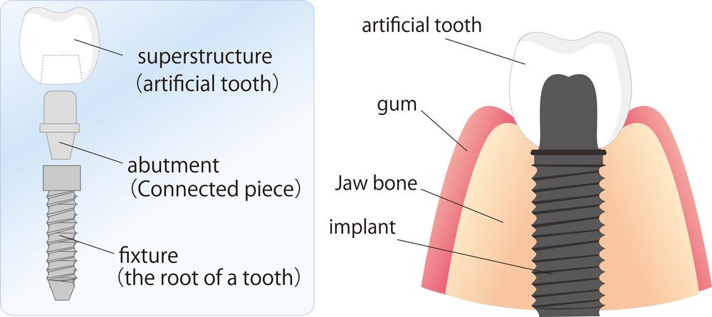 Depositphotos_6046100_original-Implant-Diagram